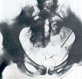 NØT SMERTE: Albert Fish stakk nåler inn i sin egen kropp. Her ved kjønnsorganene.