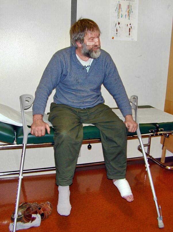 <b>SKADET:</b> Arne Sigmund Øvergård fra Flendalen i Trysil havnet i slåsskamp med en voksen hannbjørn i august 2000. Han kom unna med skrekken, noen skrammer og et bitt i venstre fot.