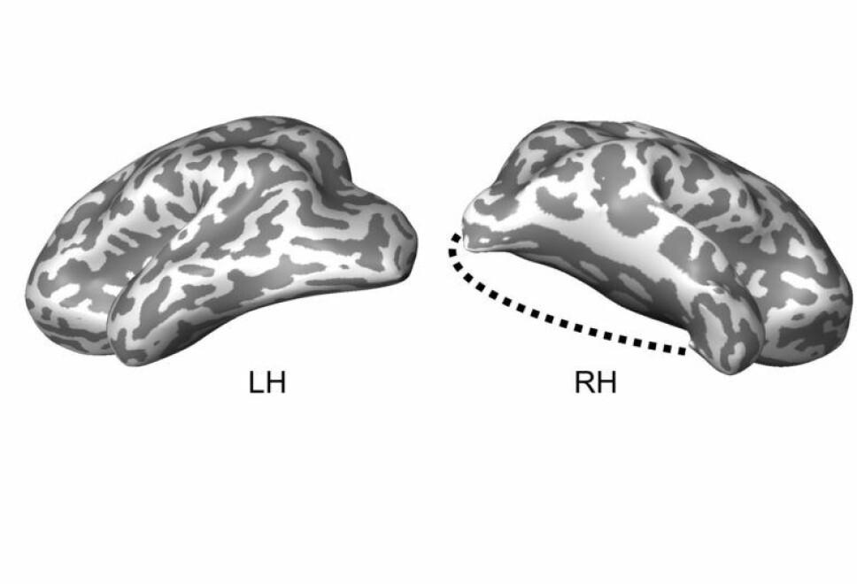 Illustrasjonen viser guttens venstre og høyre hjernedel etter operasjonen. Den prikkete linjen markerer hvor mye av hjernen som er operert bort.