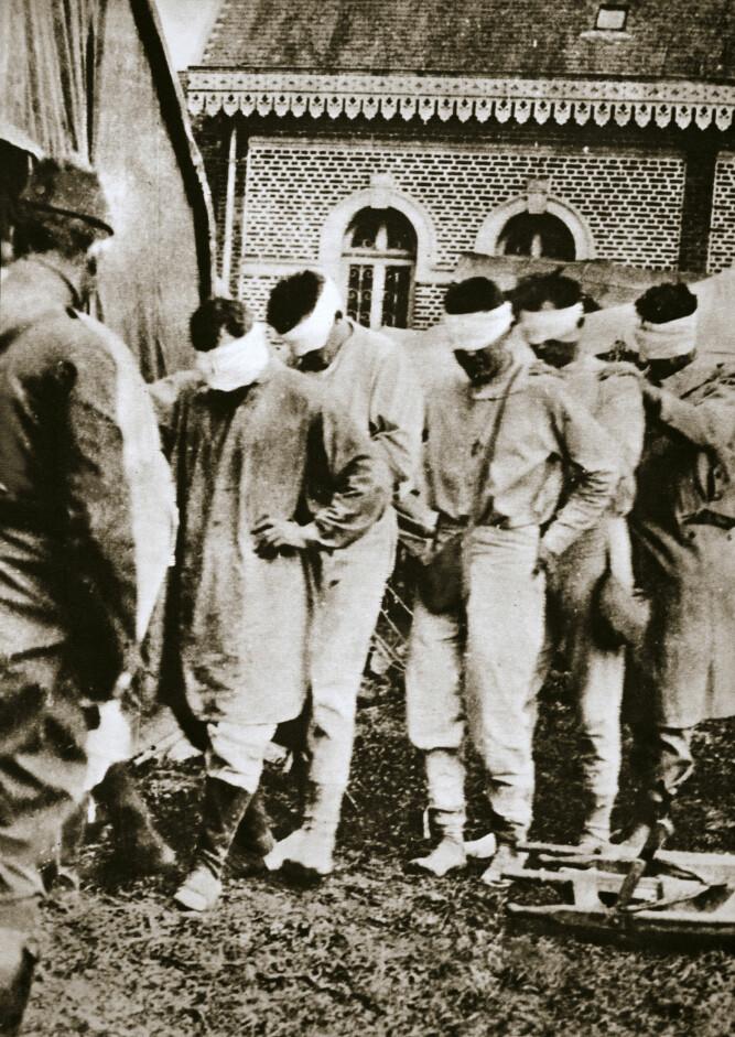 <b>BLINDE:</b> Disse soldatene har tatt oppstilling ved et fransk hospital etter å ha blitt midlertidig blindet under det andre slaget ved Ypres.