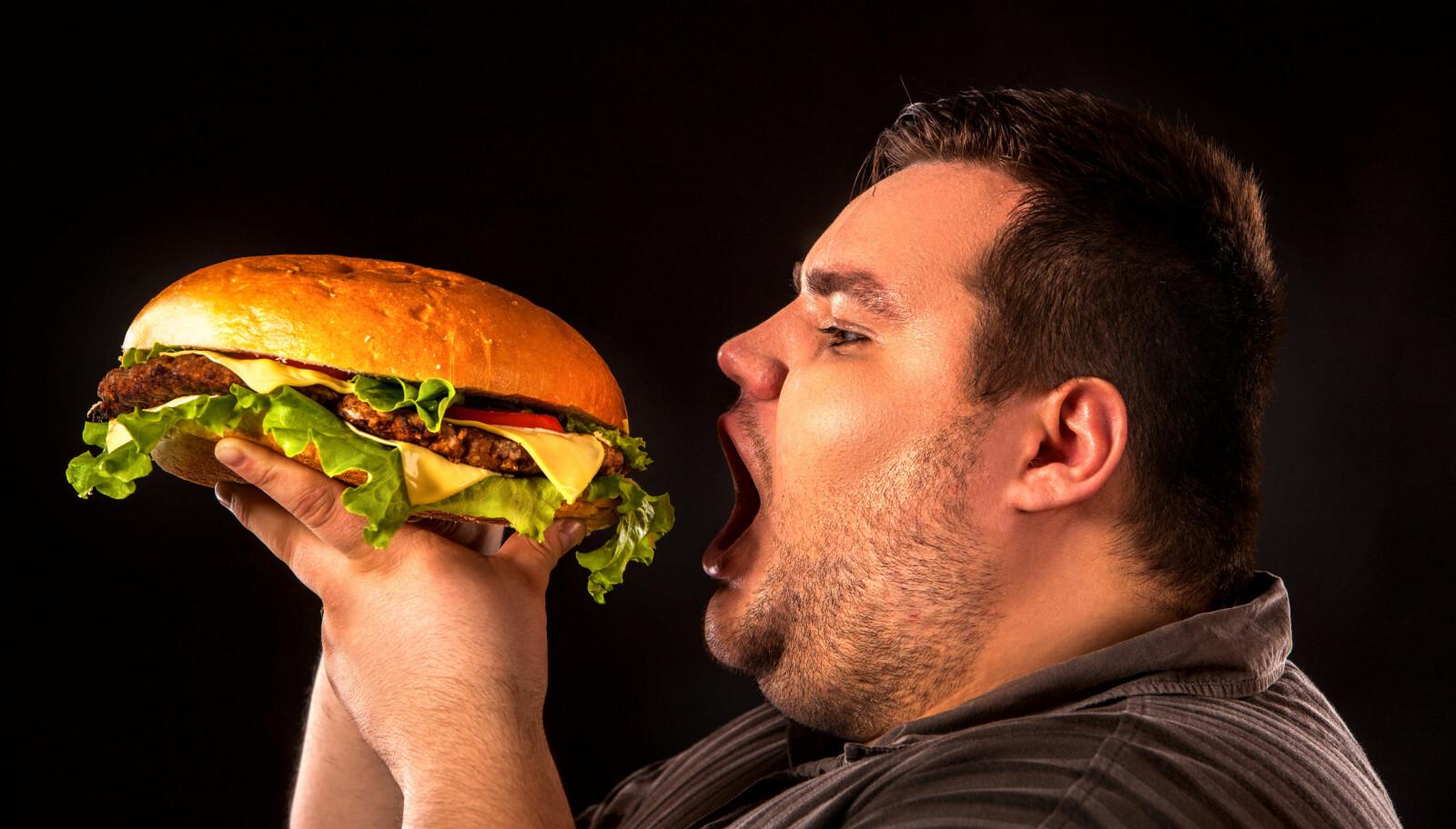 <b>FETT PÅVIRKER HJERNEN:</b> Forskere har funnet en link mellom overvekt og redusert volum av visse deler av hjernen.